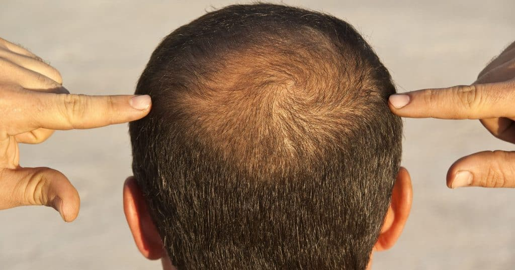 Doesketocausehairloss?